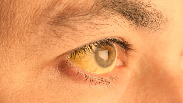 causes-skin-under-eyes-turn-yellow_6cd738be329efc8d