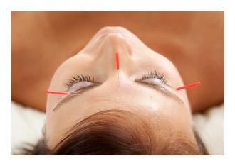 Acupuncture – Not Just Needles