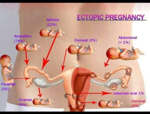 Early Symptoms of An Ectopic Pregnancy | Stay At Home Mum