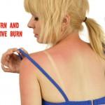 sunburn1   Stay at Home Mum.com.au
