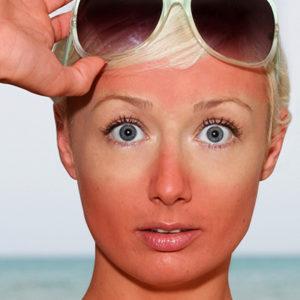 12 Home Remedies for Sunburn