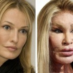 Bizarre Cosmetic Surgery | Stay at Home Mum