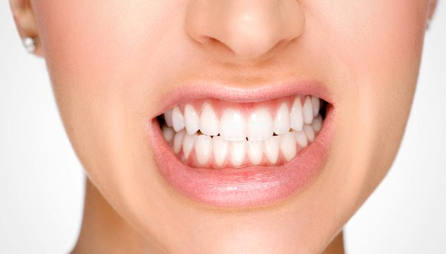 Best Teeth Whitening Kits | Stay at Home Mum