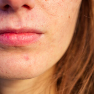 21 Reasons Why You Have Bad Skin
