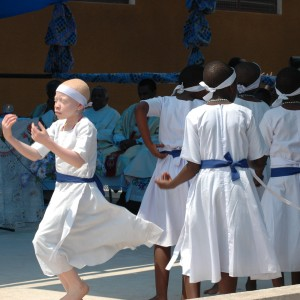 Everything You've Ever Wanted To Know About Albinism