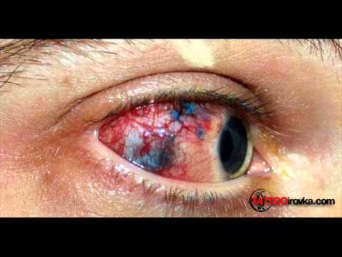 Eyeball Tattooing - The New 'Extreme' Tattoo Spot | Stay At Home Mum