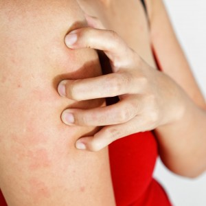 First Aid: How To Treat Anaphylaxis