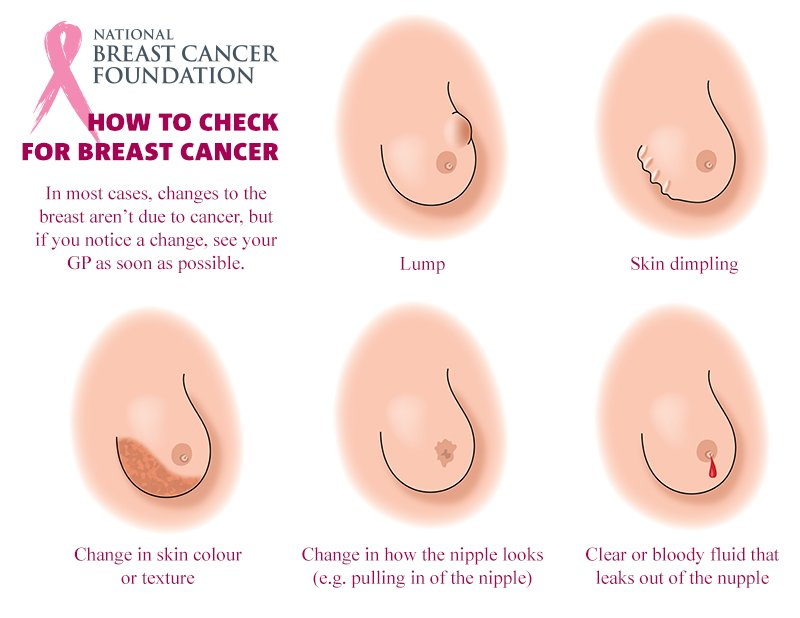 Woman S Facebook Photo On Lesser Known Breast Cancer Symptom Goes