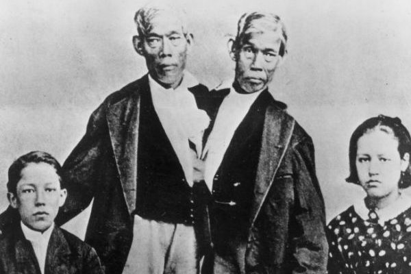 4 Stories of Famous Conjoined Twins