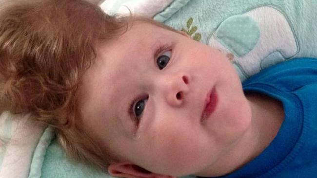 Baby Boy Born with Brain Outside His Skull Defies Odds ...