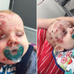 Mum Shares Photos of Her Son With Chickenpox Urging People to Get Vaccinated | Stay at Home Mum