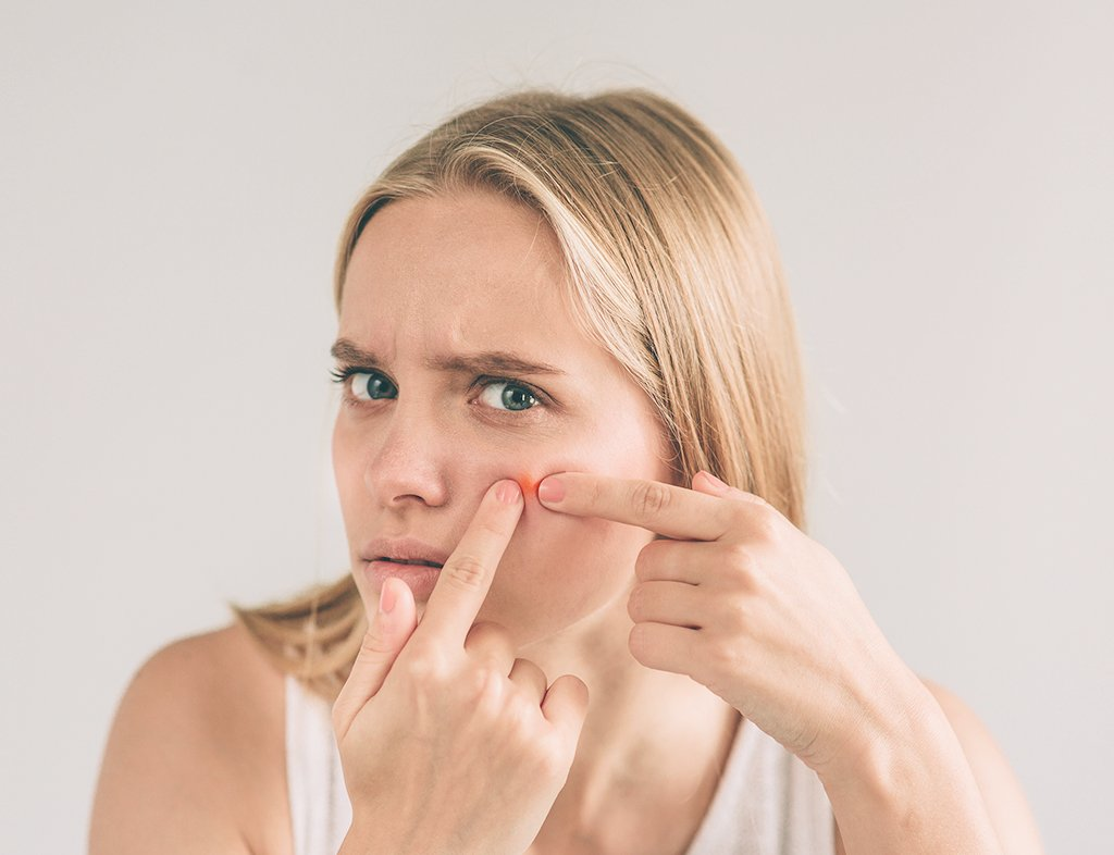 How To Deal With Adult Acne