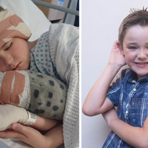 Nine-Year-Old Boy Has Plastic Surgery After Bullies Call Him 'Dumbo'
