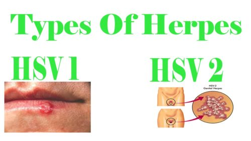 Everything You Need To Know About Herpes | Stay At Home Mum