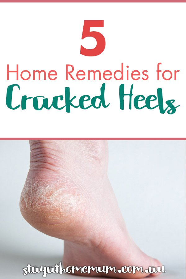 Home Remedies for Cracked Heels | Stay at Home Mum