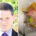 Teenager Almost Lost His Eyesight Until An Ophthalmologist Discovered He has Vitamin A Deficiency | Stay at Home Mum