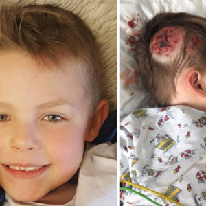 Boy Hospitalised After His Head Hit A Metal Pole When A School Bully Pushed Him