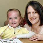 Meet 'Butterfly Girl': Four-Year-Old Girl Has Skin That Tears Off With The Slightest Touch | Stay at Home Mum