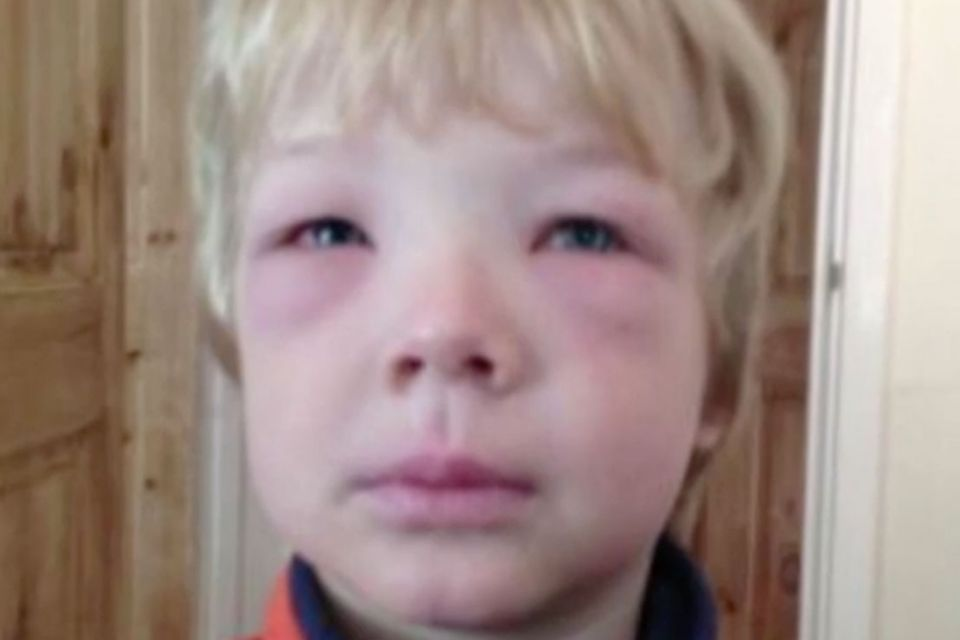 Report: Kids With Allergies Are Twice More Likely Bullied By 'Allergy Bullies' Who Spike Their Food With Allergens | Stay at Home Mum