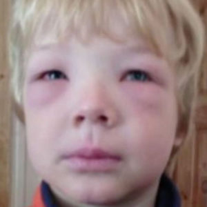 Report: Kids With Allergies Are Twice More Likely Bullied By 'Allergy Bullies' Who Spike Their Food With Allergens