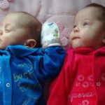 Brain Dead Pregnant Mother Kept Alive For 123 Days Before Her 'Miracle' Twins Were Delivered | Stay at Home Mum