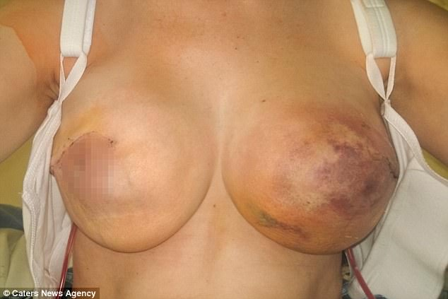 Mum Warns After Contracting Flesh-Eating Bug So Bad That Her Nipple FELL OFF | Stay at Home Mum