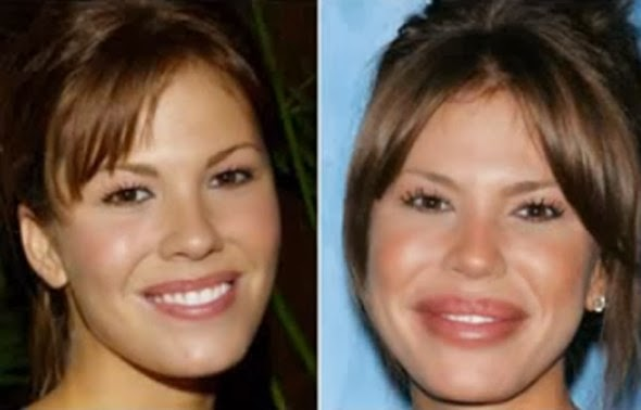 The 5 Best and 5 Worst of Hollywood Cosmetic Surgery | Stay At Home Mum