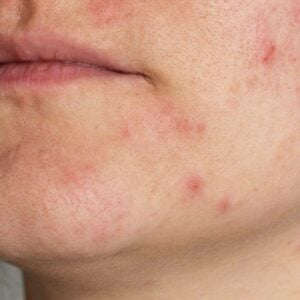 What To Do About Adult Acne