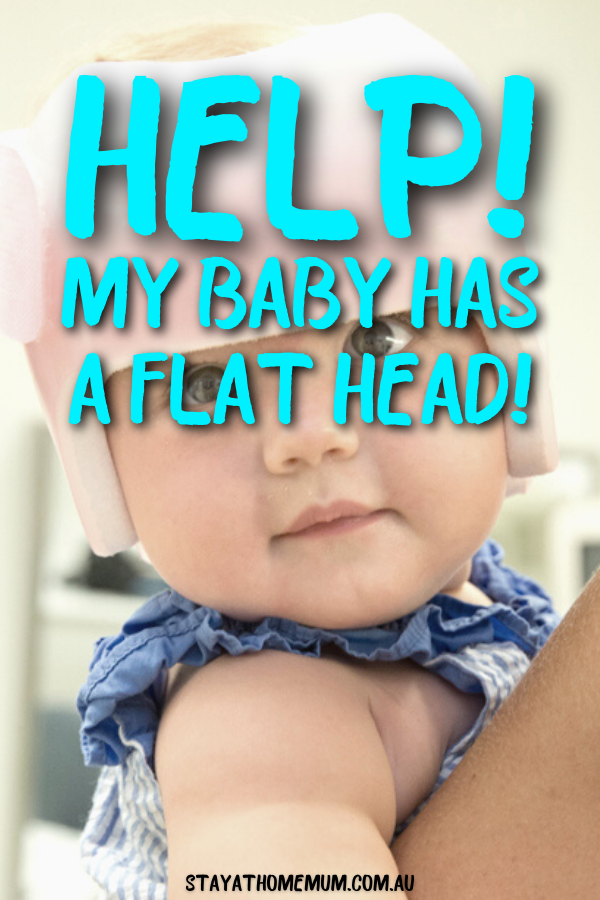 Help! My Baby Has a Flat Head! | Stay At Home Mum