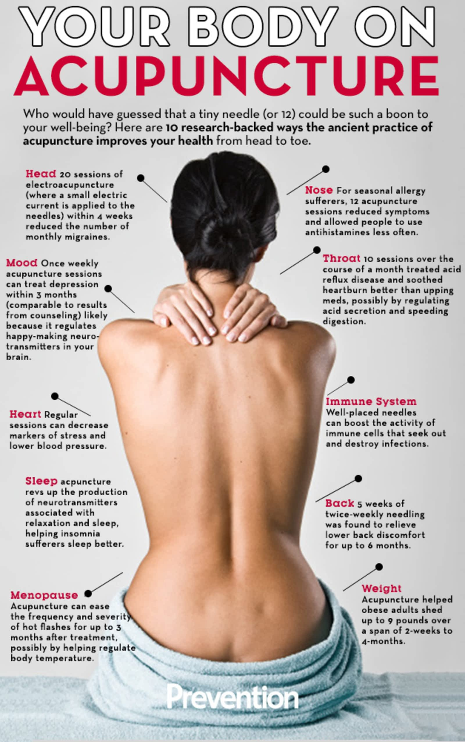 chinese acupuncture natural healing cl 3   Stay at Home Mum.com.au