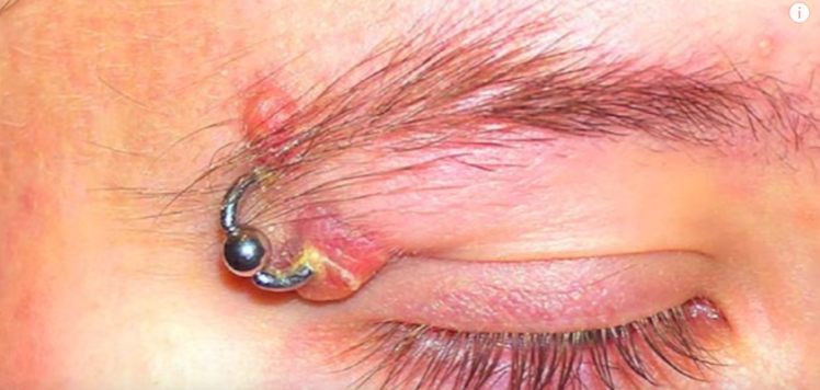 infected eyebrow piercing | Stay at Home Mum.com.au