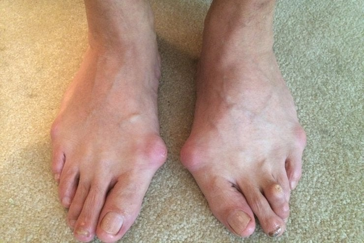 10 Photos of Gross Feet That'll Make You Want To Treat Your Feet Better