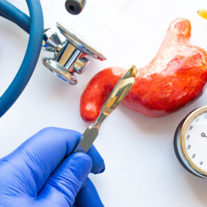 How to Fund Your Gastric Sleeve Surgery