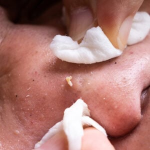 The Best Blackhead Treatments You Will Ever Need